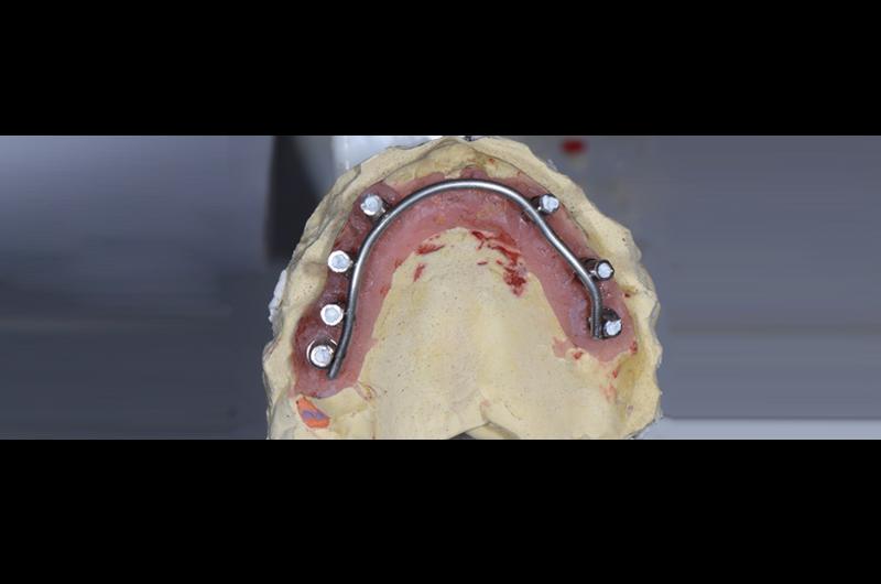 临时牙制作